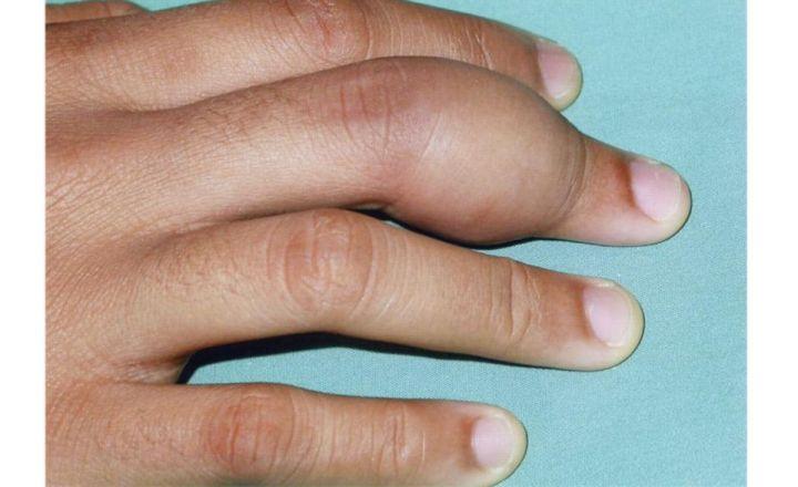 Нагноение на суставе пальца