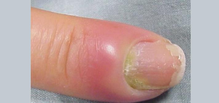 Требуется операция по удалению гноя при нарыве пальца